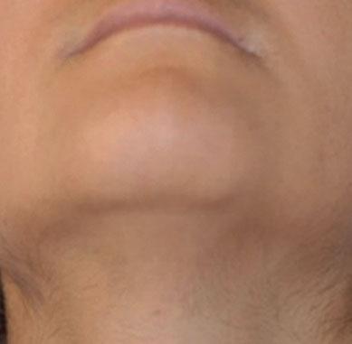 Dopo il trattamento estetico